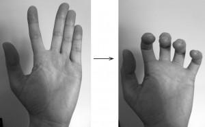 finger base joints_1