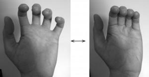 finger base joints_2